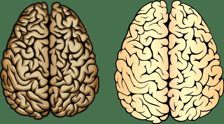 Figur 13. To forskellige hjerner. Hjernen til højre er en normal hjerne. Hjernen til venstre er ramt af Alzheimers, og er blevet ødelagt på grund af aggregater.