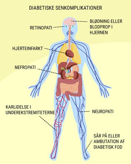 senkomplikationer diabetes type 2